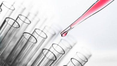 Photo of Koronaviruso infekcijos tyrimams rengiama ir Nacionalinio vėžio instituto laboratorija