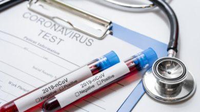 Photo of Penktadienio vakaro statistika: perdien nustatyta dar 13 koronavirusine infekcija užsikrėtusių asmenų